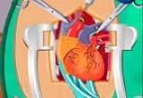 العاب جراحة القلب