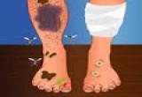 العاب علاج الاقدام ذو الرائحة الكريهة